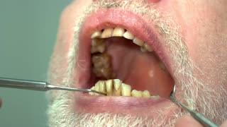 Patient of dentist, bad teeth. Opened mouth and dental probe. How to cure caries.