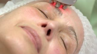 Rf skin tightening close up. Mature female face, cosmetic procedure.