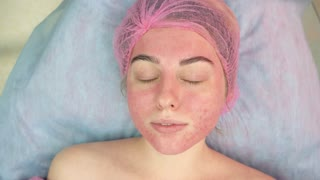 Young woman at the cosmetologist. Problematic facial skin. How to reduce skin redness.
