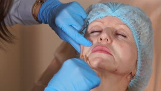 A cosmetologist is a doctor who works in a hospital who injects a cannula into the cheek of a middle-aged woman. The doctor neatly injects implants to increase the volume of soft tissues.