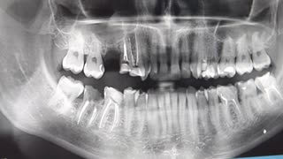 Close up shot of dental doctor showing a handle on roentgen of the teeth of man.
