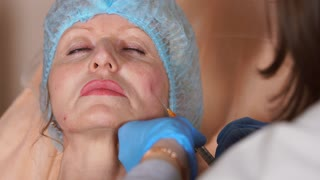 Close up shot of the middle-aged women whose face is injected with the drug is a filler. Technique for the lifting effect of the facial oval braces.