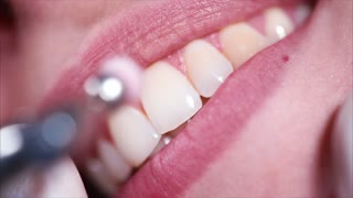 Close up shot of the women's mouth with an even bite, who is brushing the teeth of the dentist, using a special mechanical brush