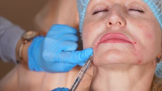 The plastic surgeon removes facial wrinkles in the area of the nasolabial folds with botulinum toxin from a middle-aged woman. The injection is done intramuscularly, to stop the aging processes