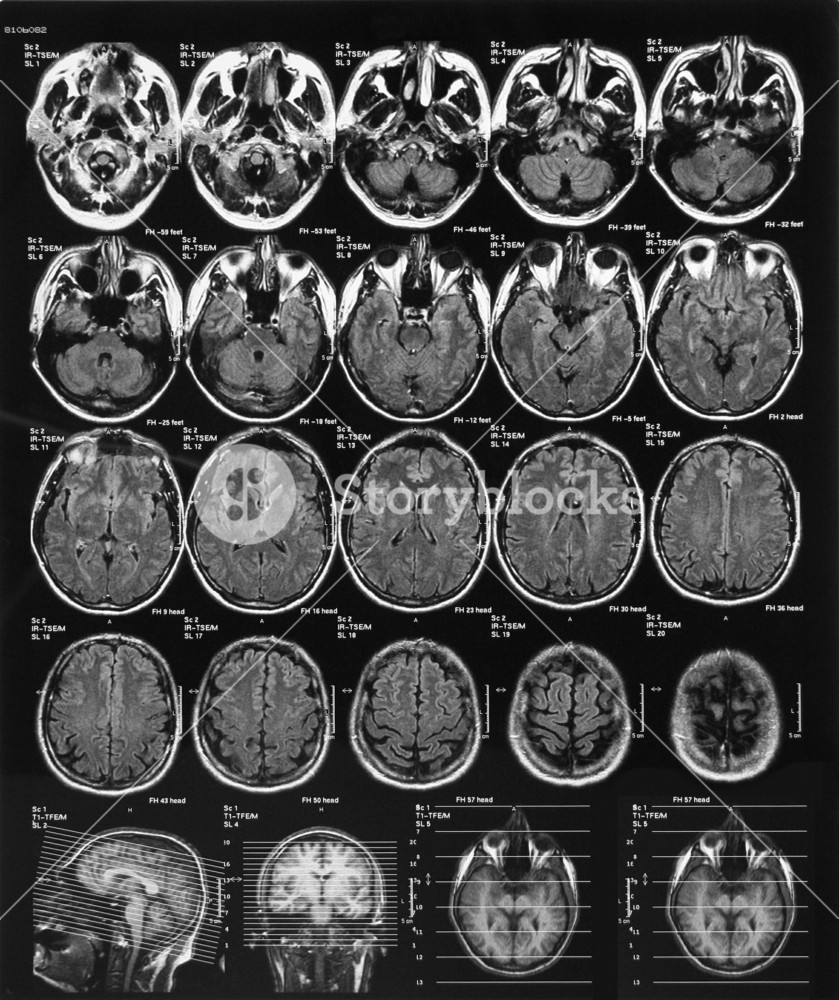 X-ray Film Of The Brain Computed Tomography